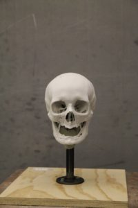 Mary Camp Skull reconstruction